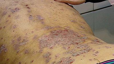 Más de un millón de españoles tiene psoriasis