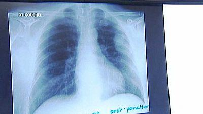 La comunidad científica busca una respuesta, en factores hormonales, ambientales o genéticos al cáncer de pulmón