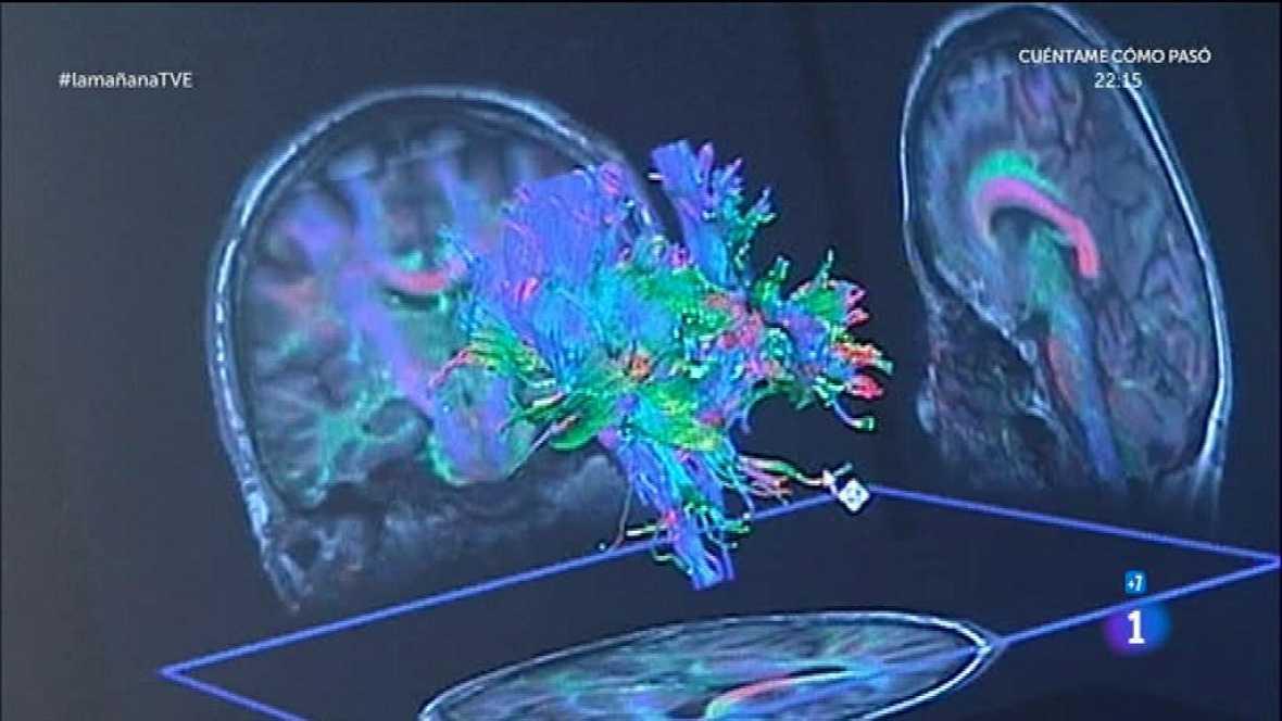 Cuidar las neuronas