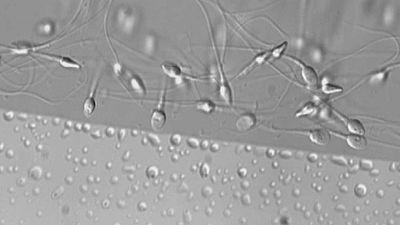 Tres de cada diez hombres en edad fértil tiene semen de mala calidad