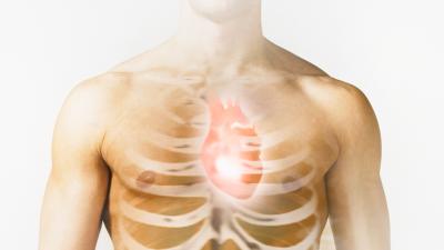 El aneurisma de la aorta