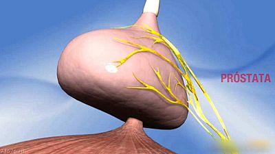 Se celebra el Día Mundial del cáncer de próstata, el tumor más frecuente entre los hombres