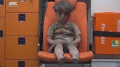 Un niño herido en Alepo se convierte en el símbolo de la guerra en Siria