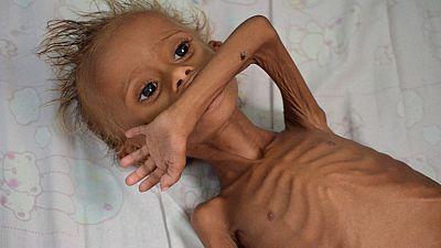 La hambruna, una de las peores consecuencias de la guerra en Yemen