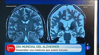 D�a mundial del Alzheimer
