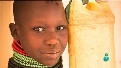 La Aventura del Saber. Cirug�a en Turkana
