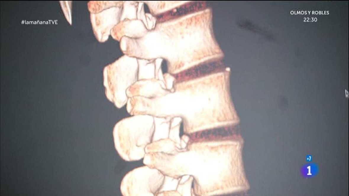 Columna y hernia discal
