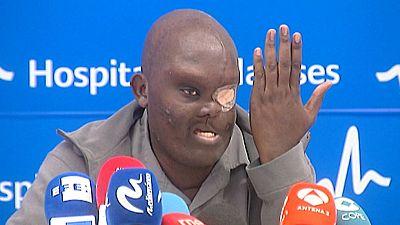 Mike procedente de Kenia es operado de un tumor del tamaño de su cabeza en España para ganar calidad y años de vida