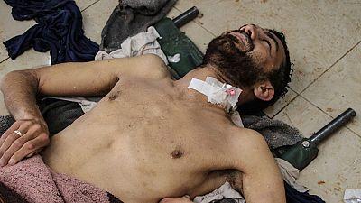 Al menos 58 muertos en Siria tras un bombardeo supuestamente con gases tóxicos
