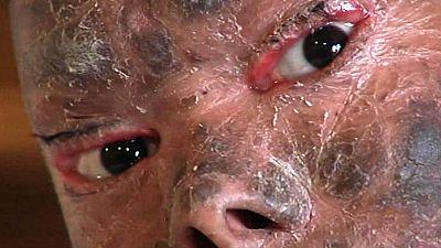 En  Málaga está siendo tratada una chica india de una extraña enfermedad genética que le hace mudar la piel cada 45 días