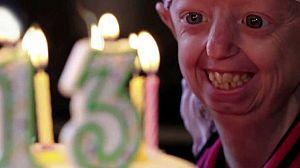 Hayley: la adolescente más vieja del mundo