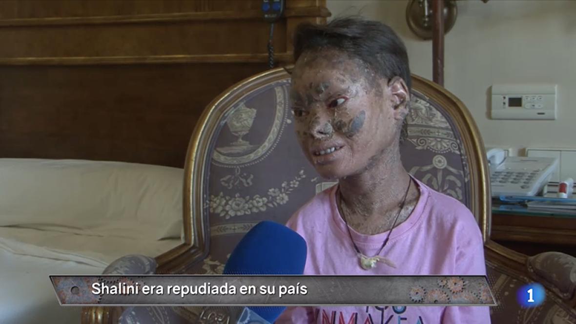 """No os perdáis el caso de Shalini, la llamada """"niña serpiente"""". La entrevistamos en EXCLUSIVA y lo debatimos con los doctores que han tratado a la joven. #HoraPuntaTVE"""