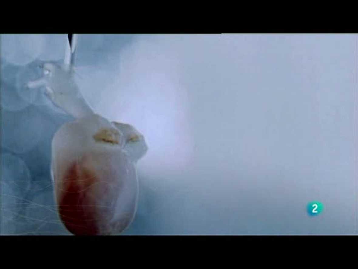 Redes (27/06/10): La nueva cardiología